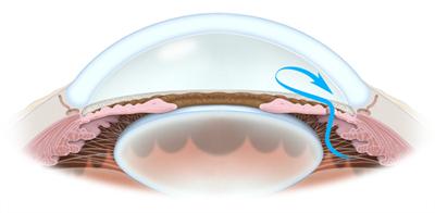 Peripheral Iridotomy West Coast Glaucoma West Coast